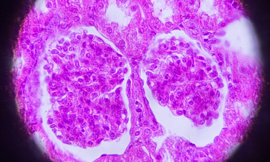 Urological specimen under a microscope
